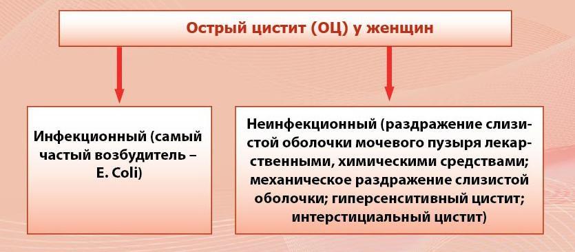 Острый цистит у женщин (схема)